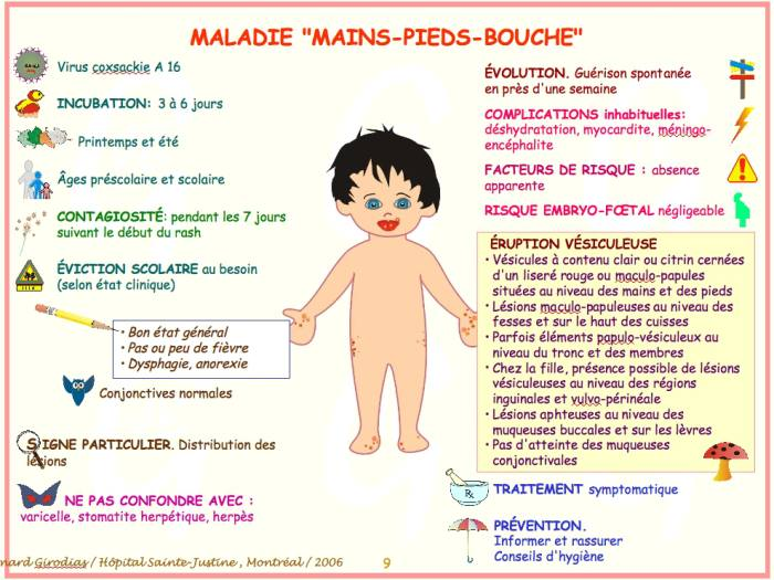syndrome pied main bouche eviction scolaire